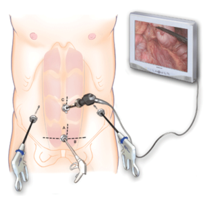 Bariatric Surgery Instruments